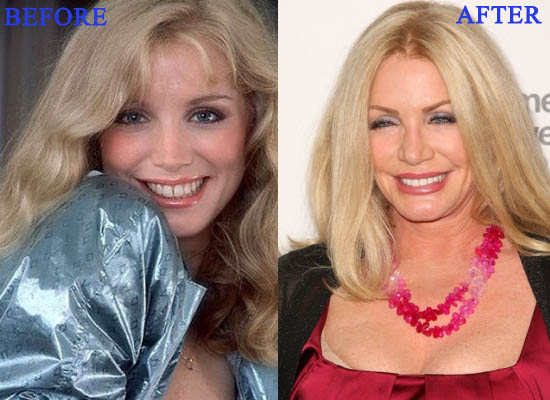 angelyne before after - photo #34