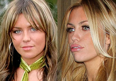 Abbey Clancy Lips Job Facelift And Botox Injections