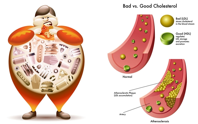 คอเลสเตอรอล (Cholesterol) @ www.vanguardpharmacy.com
