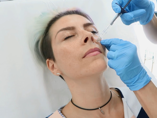 ВИДЕО: Запълване на назолабиално хлътване и бръчки с филър
