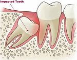 Manfaat buah naga untuk Kesehatan tulang dan gigi, manfaat buah naga