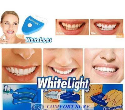 WHITE LIGHT PEMUTIH GIGI BERKESAN