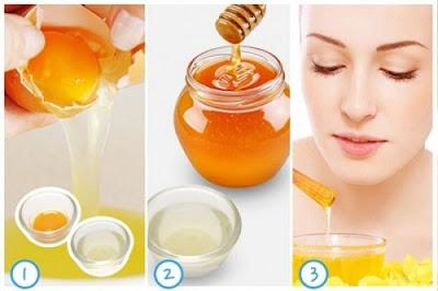 Trị tàn nhang bằng trứng gà kết hợp với mật ong