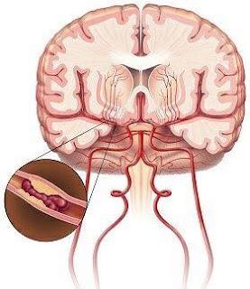 طريقة الوقاية  من الجلطة الدماغية