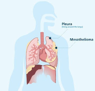 Two Broad Types of Mesothelioma