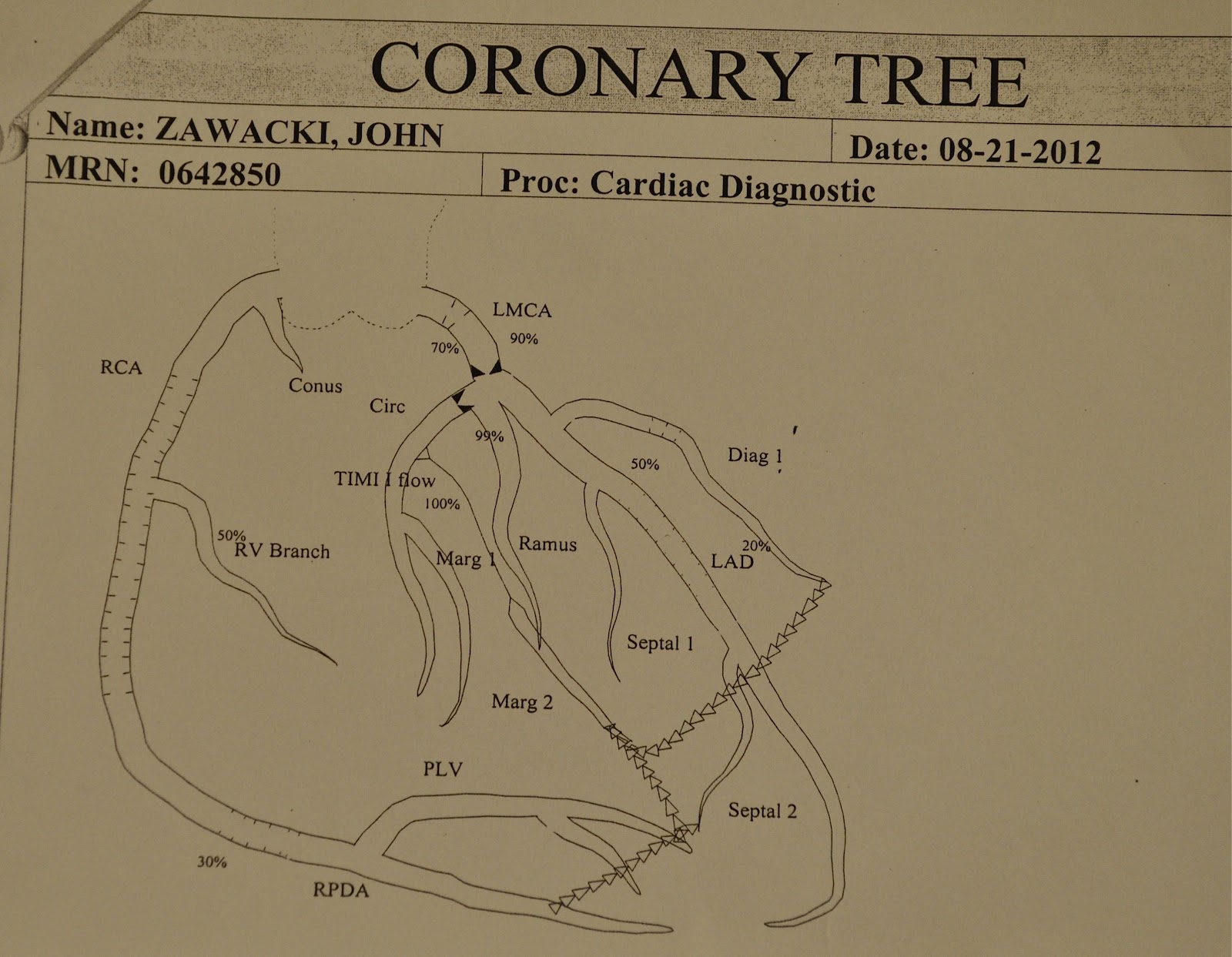 coronary anatomy diagram how to read automotive wiring diagrams wit 39s end tree