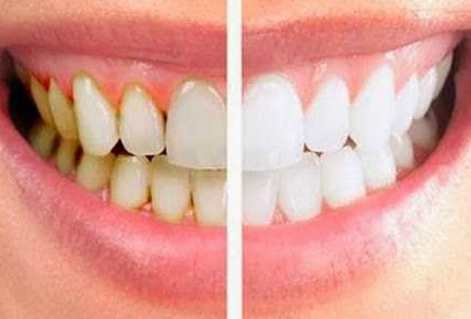 Penyebab Gigi Kuning Dan Cara Mengatasinya