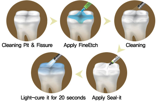 Fissure Sealing Introduction Definition Clinical