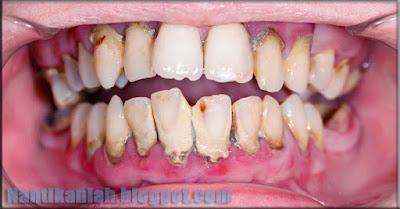 menghilangkan karang gigi secara alami