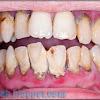 7 Tips Cara Menghilangkan Karang Gigi Secara Alami