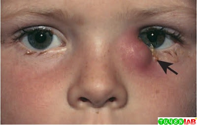 Dacryocystitis (infection of the lacrimal sac) of the left eye (arrow) in a young child.
