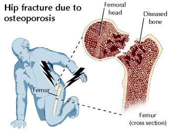 premium beautiful corset mencegah osteoporosis dan patah tulang belakang dan pinggul dengan cahaya FIR dan membantu badan membina vitamin D