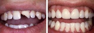 Hàn răng cửa bị mẻ bằng composite giữ được tối đa bao lâu?