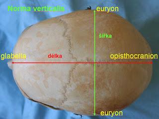 titik pada dahi lateral