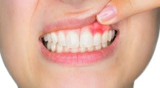 علاج التهاب اللثة وانتفاخها بالاعشاب