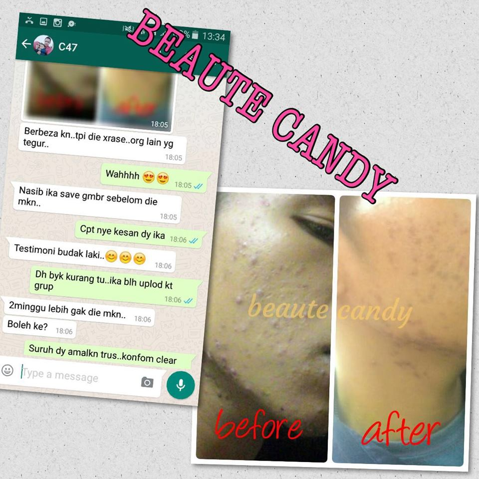 BEAUTE CANDY Solehah Beauty Centre