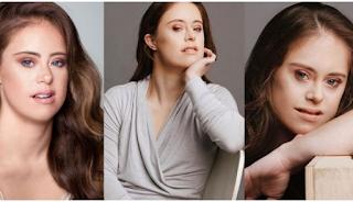 Πρωταθλήτρια ενόργανης με σύνδρομο Down γίνεται μοντέλο και εμπνέει όλες τις γυναίκες του κόσμου