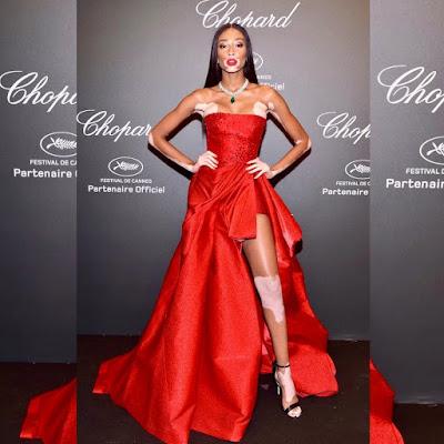 Harlow-modelo-con-vitiligo-vestido-rojo