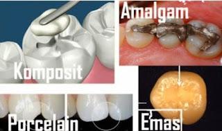 Harga Tambal Gigi Berlubang, Patah dengan Laser dan Amalgam di Klinik Swasta dan Puskesmas 2016