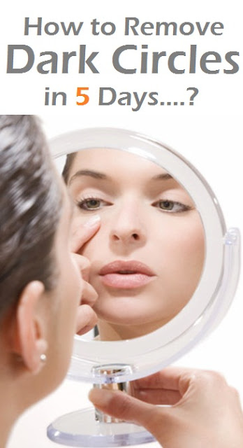 How to Remove Dark Circles in 5 Days....?