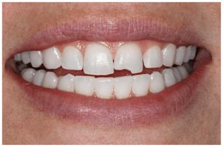 Trám răng mẻ như thế nào ?