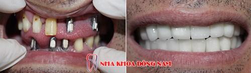 dịch vụ Trồng Cấy Ghép Implant -10