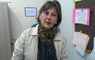 Professora é agredida por aluno após expulsá-lo de sala: 'Dilacerada'