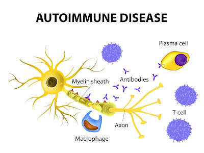 Is Your Chronic Neuropathy Caused By Auto-Immune Disease
