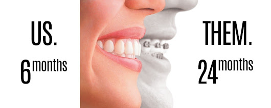 Forget the traditional braces! Try Invisalign® or Powerprox Six Month Braces®!