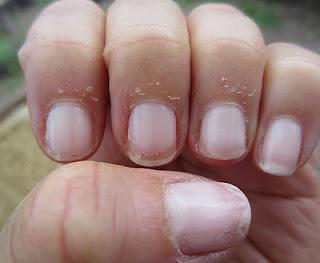 وصفات طبيعيه للتخلص من الجلد الميت