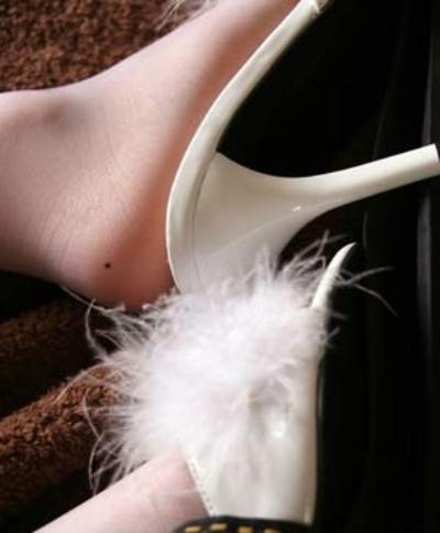 Nốt ruồi ở gót chân