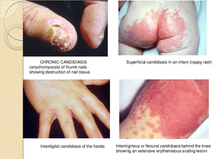 Si sobre las uñas el hongo a que médico dirigirse