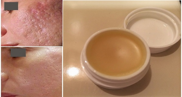 Unique Homemade Cream To Get Rid of Scars Completely Within 2 Weeks