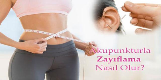 Akupunkturla Zayıflama