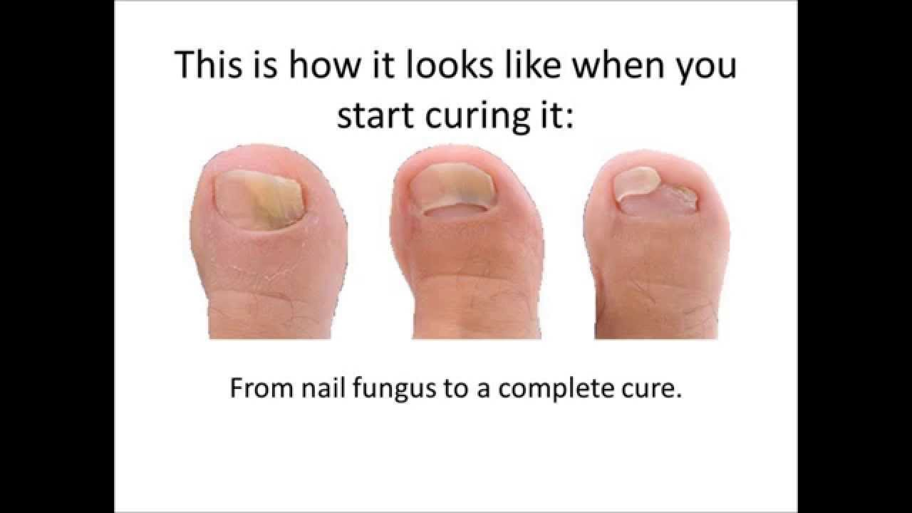 can fingernail fungus get on vagina