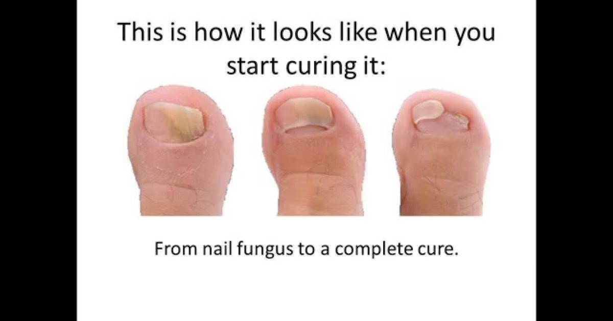 Nail Fungus Treatment Reviews How To Get Rid Of Nail Fungus For Good