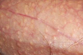 Timbul Benjolan Kasar Di Kemaluan Bahaya Penyakit Apa