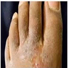 Untuk mengobati penyakit eksim kering menahun di kaki