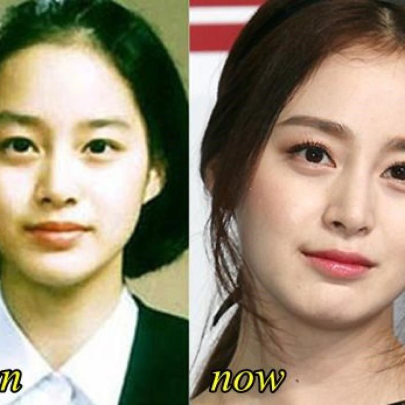 kim tae hee plastic surgery before and after pictures