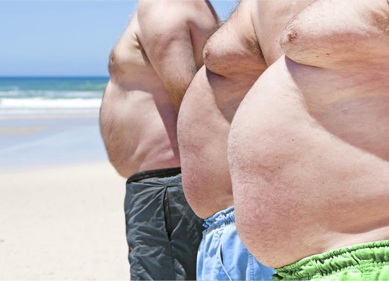 Obat Penyakit Obesitas Di Apotik