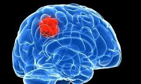 Obat Kanker Otak Ampuh Tradisional, obat ampuh kanker otak, pengobatan ampuh kanker otak