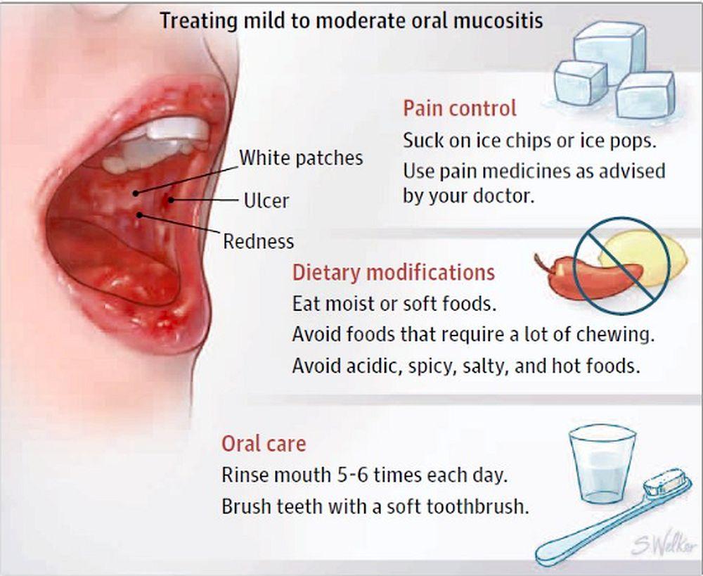Oral Mucositis