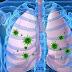 निमोनिया के लक्षण और घरेलू उपचार,  Pneumonia symptoms and home remedies