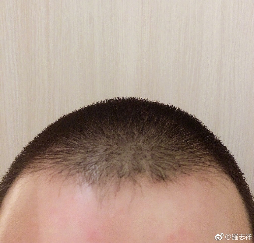 Show Luo gets a buzz cut for the first time in his career