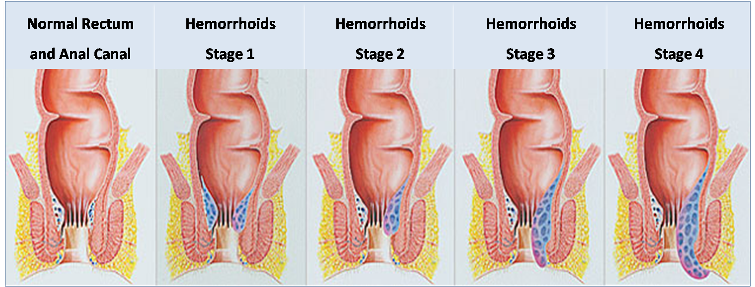hemorrhoid surgery