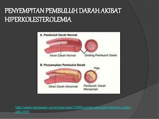 hiperkolesterolemia-www.healthnote25.com