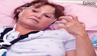 epilepsy, মৃগী রোগ