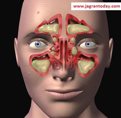नाक की हड्डी बढ़ने का इलाज