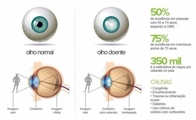 cegueira diabetes mellitus