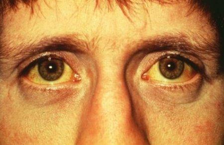 Image Result For Penyakit Kuning
